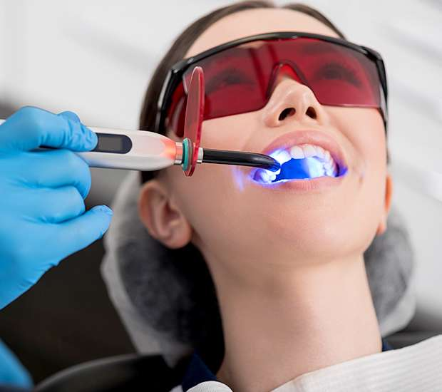 Fairfield Professional Teeth Whitening